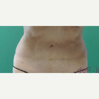 65-74 year old woman treated with SculpSure after 2634578