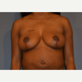 35-44 year old woman treated with Breast Lift after 3414850