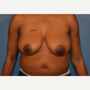 35-44 year old woman treated with Breast Lift before 3414850