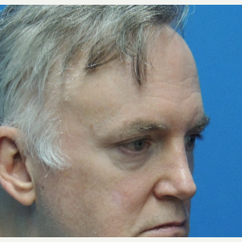 55-64 year old man treated with Eyelid Surgery before 3623567