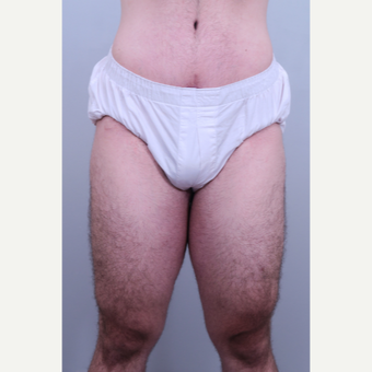 18-24 year old man treated with Thigh Lift after 3406434