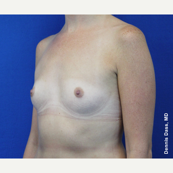25-34 year old woman treated with Sientra Breast Implants before 3353084