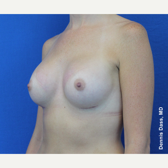 25-34 year old woman treated with Sientra Breast Implants after 3353084