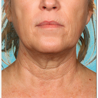 "55-64 year old woman treated with Kybella for corruption of sub mental fullness /""double chin"" after 2334985"