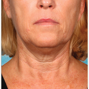 "55-64 year old woman treated with Kybella for corruption of sub mental fullness /""double chin"" before 2334985"