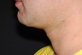 37 Year Old Male Treated for Skin Lifting and Tightening before 962683