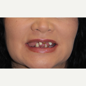 All-on-4 Dental Implants before 2372784