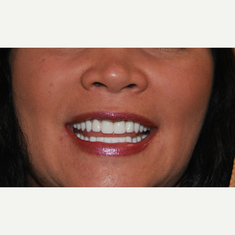 All-on-4 Dental Implants after 2372784