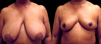 53 yr old African american woman before and after breast reduction procedure before 1141902