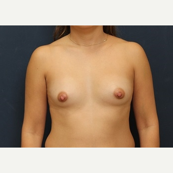 25-34 year old woman treated with Breast Augmentation before 3344123