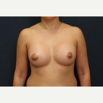 25-34 year old woman treated with Breast Augmentation after 3344123