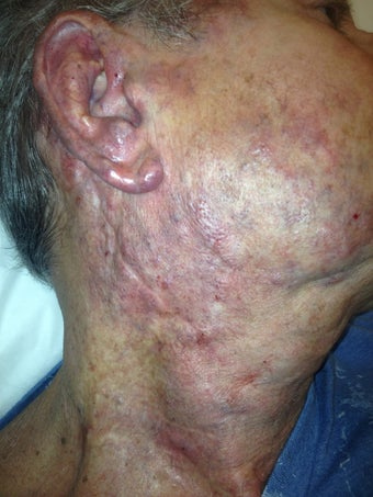 67 year old male with extensive hemangioma of face, neck and ear after 977896