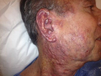 67 year old male with extensive hemangioma of face, neck and ear before 977896