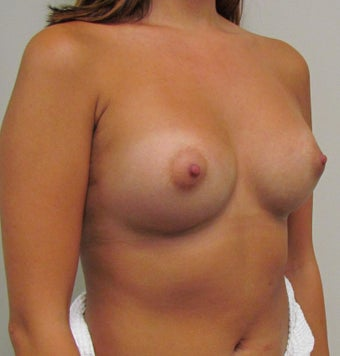 Saline Breast Implants for this 19 Year Old Woman after 1394636