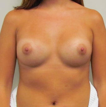 Saline Breast Implants for this 19 Year Old Woman 1394636