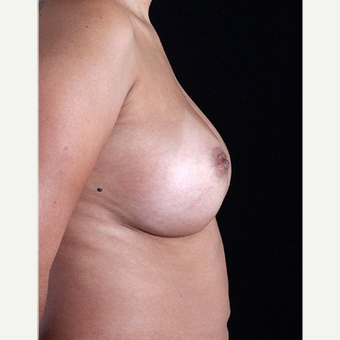 35-44 year old woman treated with Breast Augmentation after 3127223