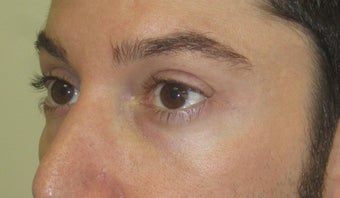Injectable fillers to lower lids and midface before 1391324