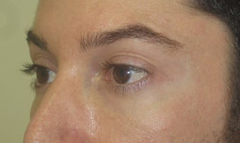 Injectable fillers to lower lids and midface after 1391324