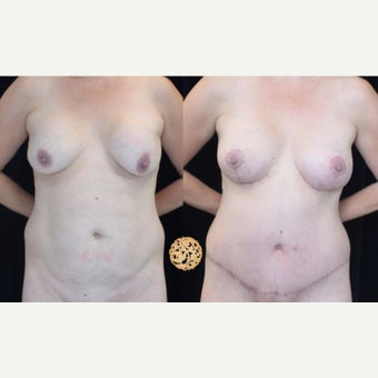 45-54 year old woman treated with Breast Implant Removal before 2421938