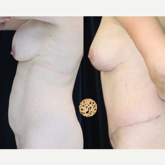 45-54 year old woman treated with Breast Implant Removal after 2421938