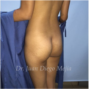 18-24 year old woman treated with Butt Implants before 2692714