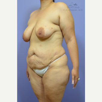35-44 year old woman treated with Mommy Makeover before 3421584