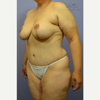 35-44 year old woman treated with Mommy Makeover after 3421584