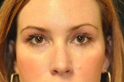 32 Year Old Female Had a Blepharoplasty after 1232546