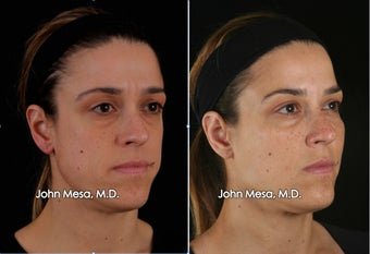 Voluma to augment Cheeks (mid face) before 1414404