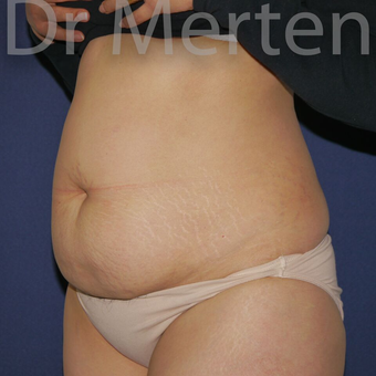 Tummy Tuck before 3599631
