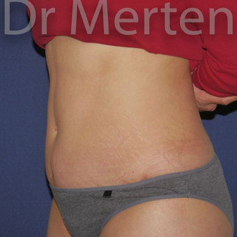 Tummy Tuck after 3599631