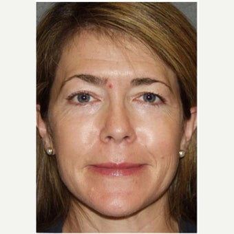 Woman treated with Photofacial after 2661405