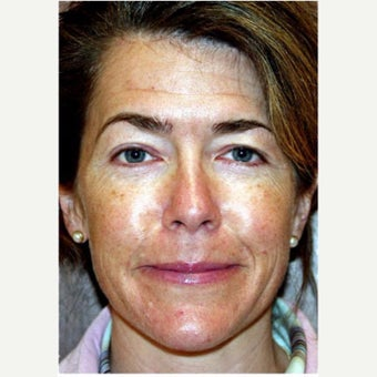 Woman treated with Photofacial before 2661405