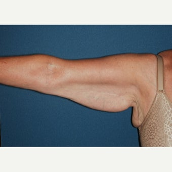 55-64 year old woman treated with Arm lift, brachioplasty. before 2280416