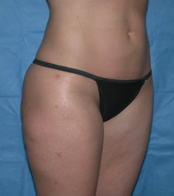 Laser Lipo and Cellulaze after 1367959