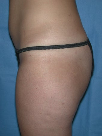 Laser Lipo and Cellulaze 1367959