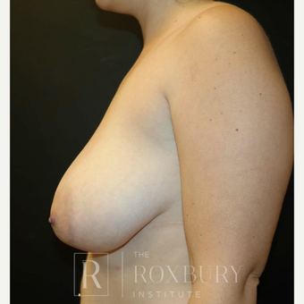 45-54 year old woman treated with Breast Lift before 3844281