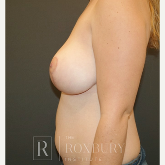 45-54 year old woman treated with Breast Lift after 3844281