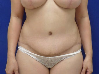 44 y.o. female–Mommy Makeover, Breast Lift w/ Silicone Style 15 421cc & Abdominoplasty (Tummy Tuck) after 3089167