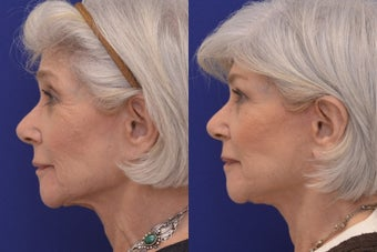 70 Year-old woman treated with Xeomin, Restylane, Face and Necklift, and Neck Suture Suspension. before 1221315