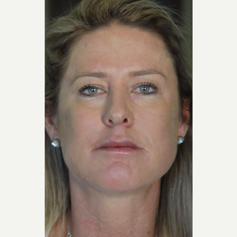 35-44 year old woman treated with Cheek Augmentation