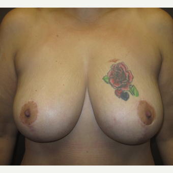 35-44 year old woman treated with Breast Lift after 3253171