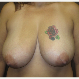 35-44 year old woman treated with Breast Lift before 3253171