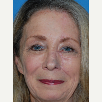 65-74 year old woman treated with Facial Reconstructive Surgery