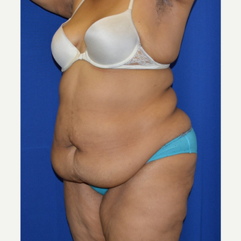 55-64 year old woman treated with No-Drain Tummy Tuck before 3655720