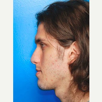 25-34 year old man treated with Orthognathic Surgery before 2346877