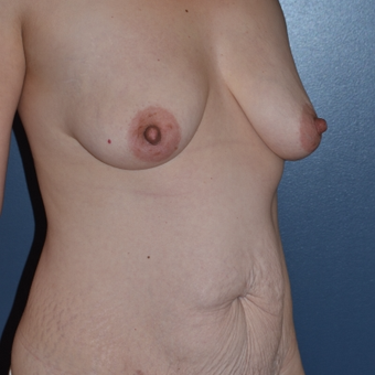 35-44 year old woman treated with Mommy Makeover before 3616464