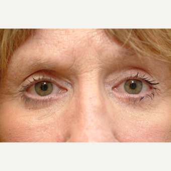 55-64 year old woman treated with Eye Bags Treatment after 2829486