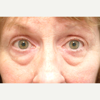 55-64 year old woman treated with Eye Bags Treatment before 2829486