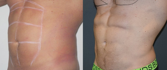 25-34 year old man treated with Vaser Liposuction before 4599322